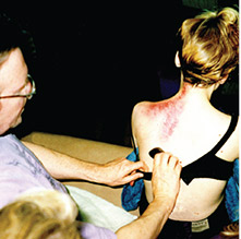 Bruce performing gua sha on a woman who suffers chronic neck and shoulder pain after a skiing accident six years before. Immediately after treatment she reported her mobility had increased and the pain was much diminished.