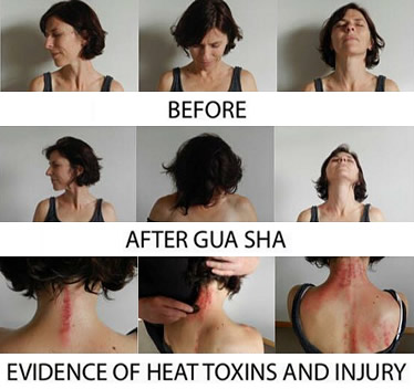 Gua Sha before and after examples