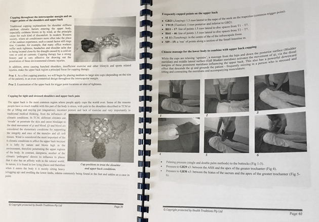 Modern Cupping Therapy workbook