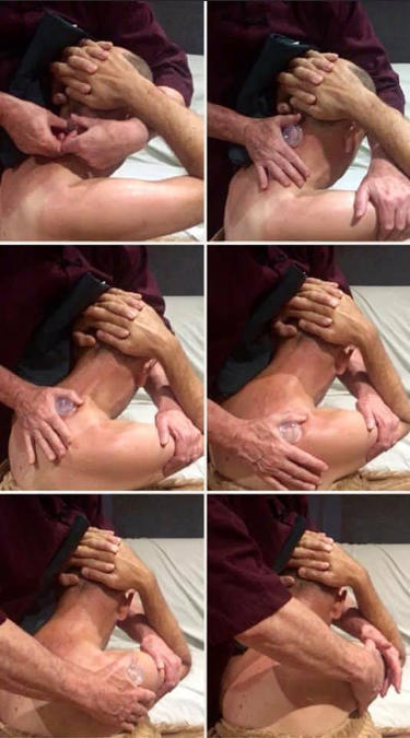 Silicone cupping treatment