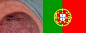 EssaysCuppingBruisePortugal